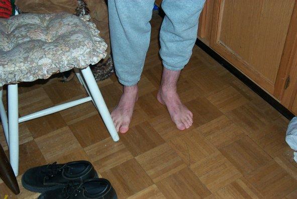 Steven's Cold Feet